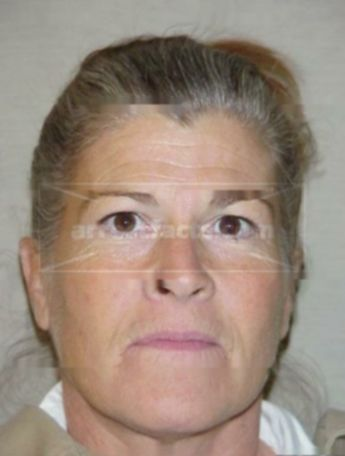 Linda Allen Address Phone Number Public Records Radaris